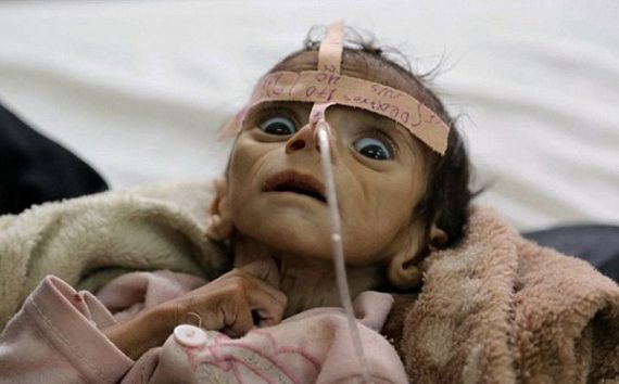 Anak-anak di Yaman Terancam Mati Kelaparan Tahun 2021