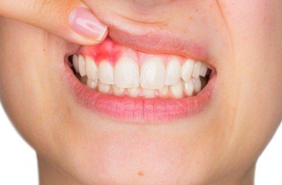 Jaga Kesehatan Mulut dan Gigi Anak Anda